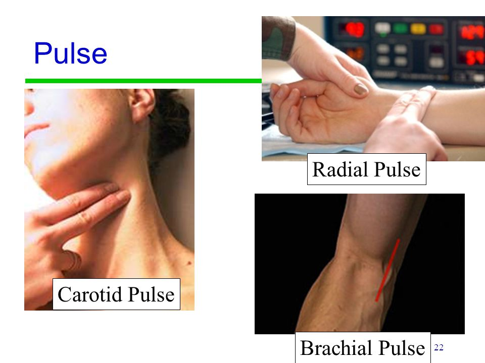 Pulse Radial Pulse Carotid Pulse Brachial Pulse