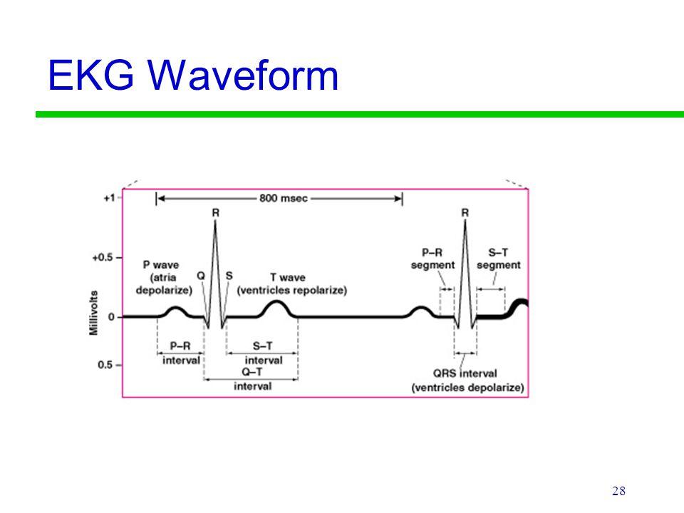 EKG Waveform