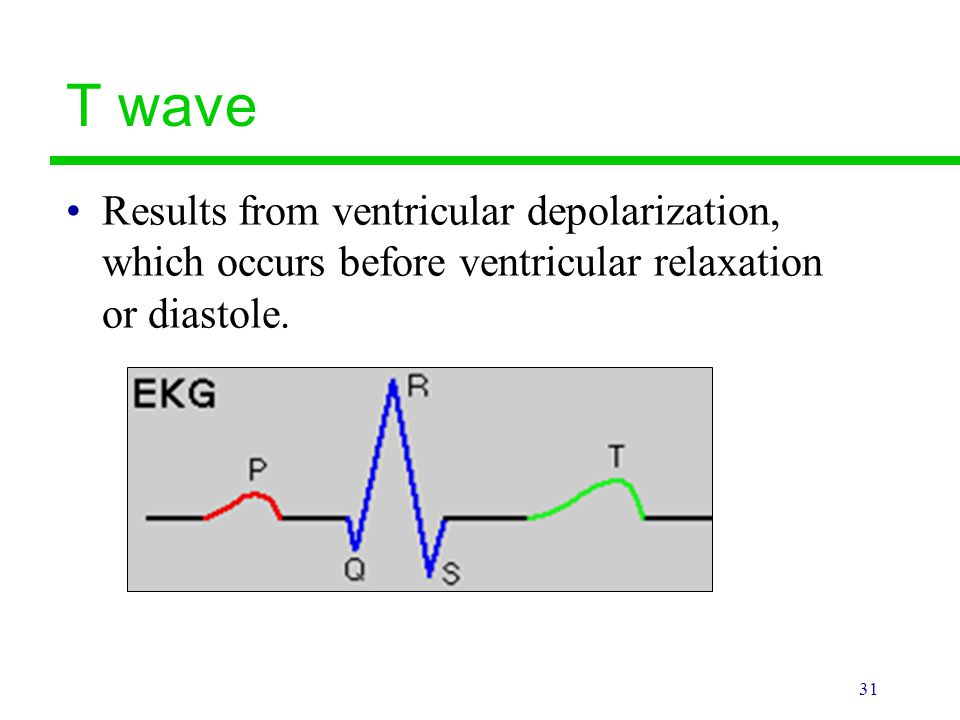 T wave Results from ventricular depolarization, which occurs before ventricular relaxation or diastole.