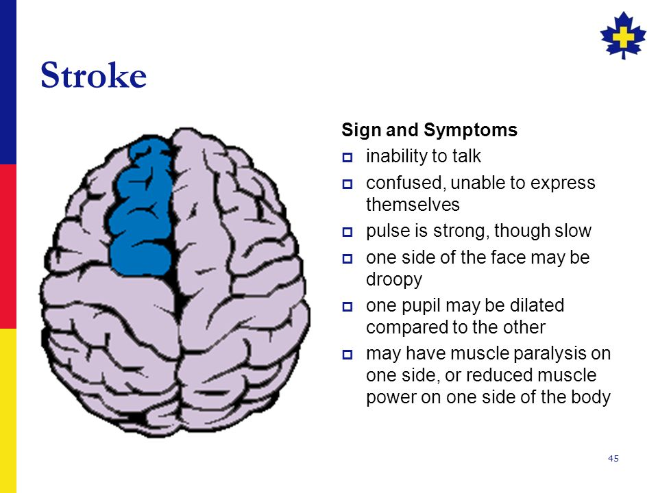 Stroke Sign and Symptoms inability to talk