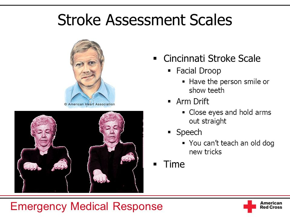 Stroke Assessment Scales