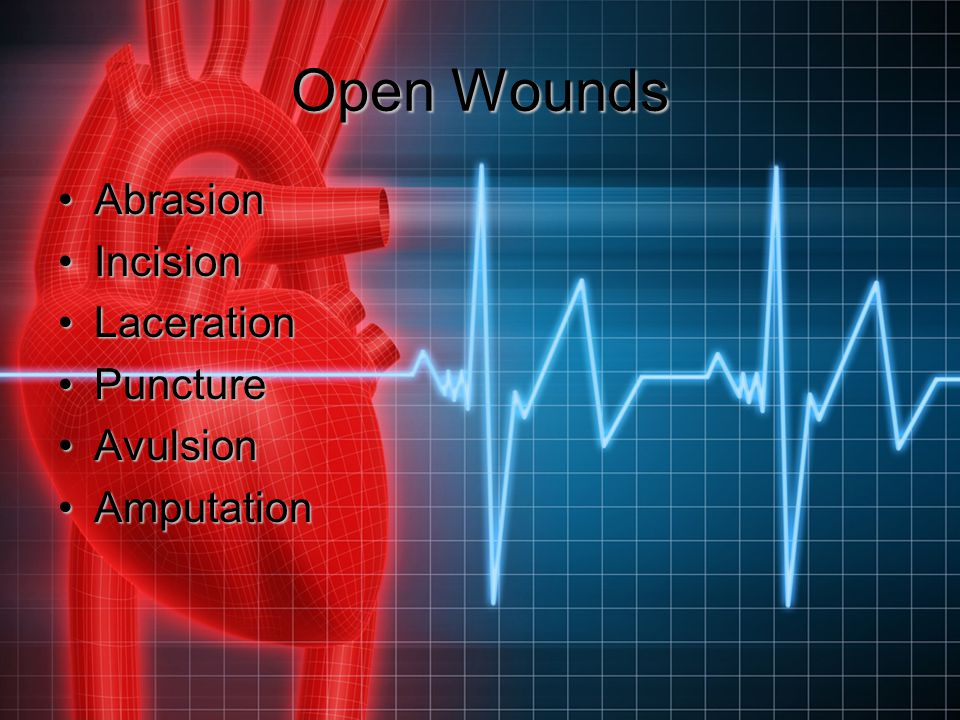 Open Wounds Abrasion Incision Laceration Puncture Avulsion Amputation