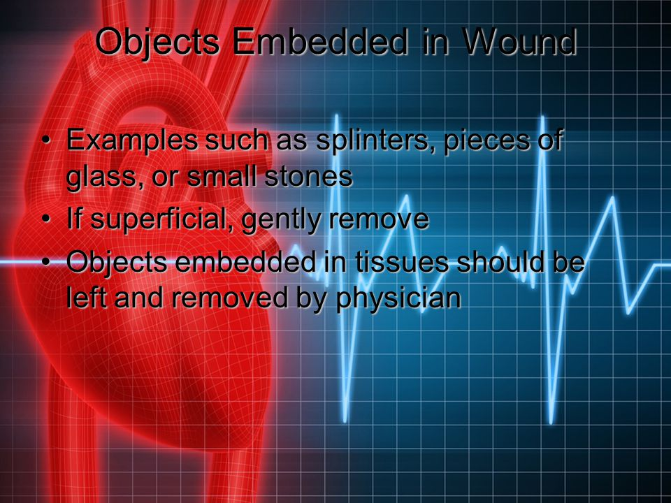 Objects Embedded in Wound