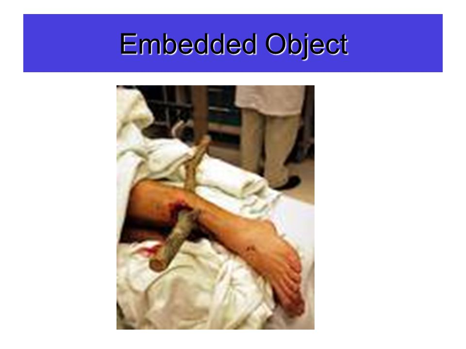 Embedded Object