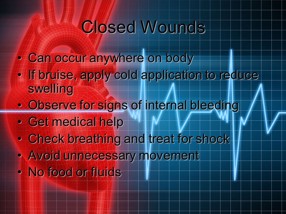 Closed Wounds Can occur anywhere on body