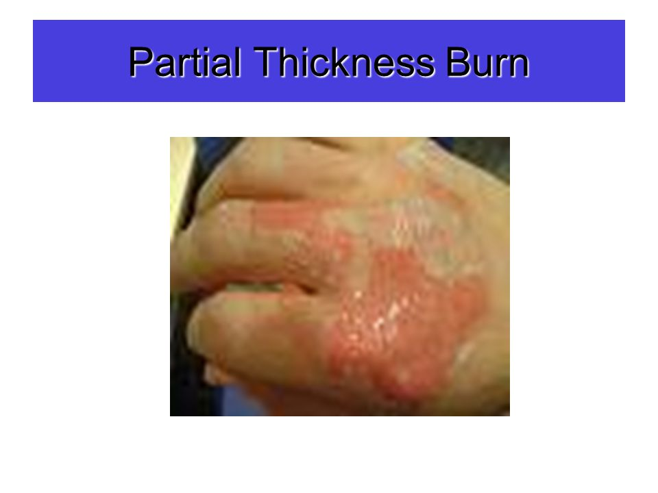 Partial Thickness Burn