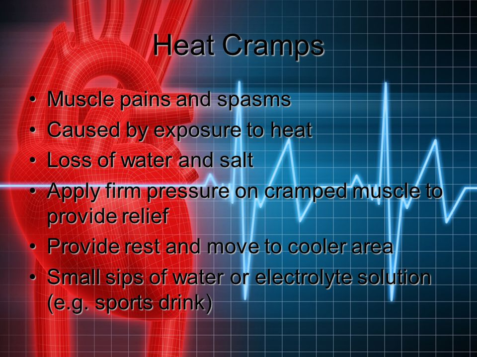 Heat Cramps Muscle pains and spasms Caused by exposure to heat