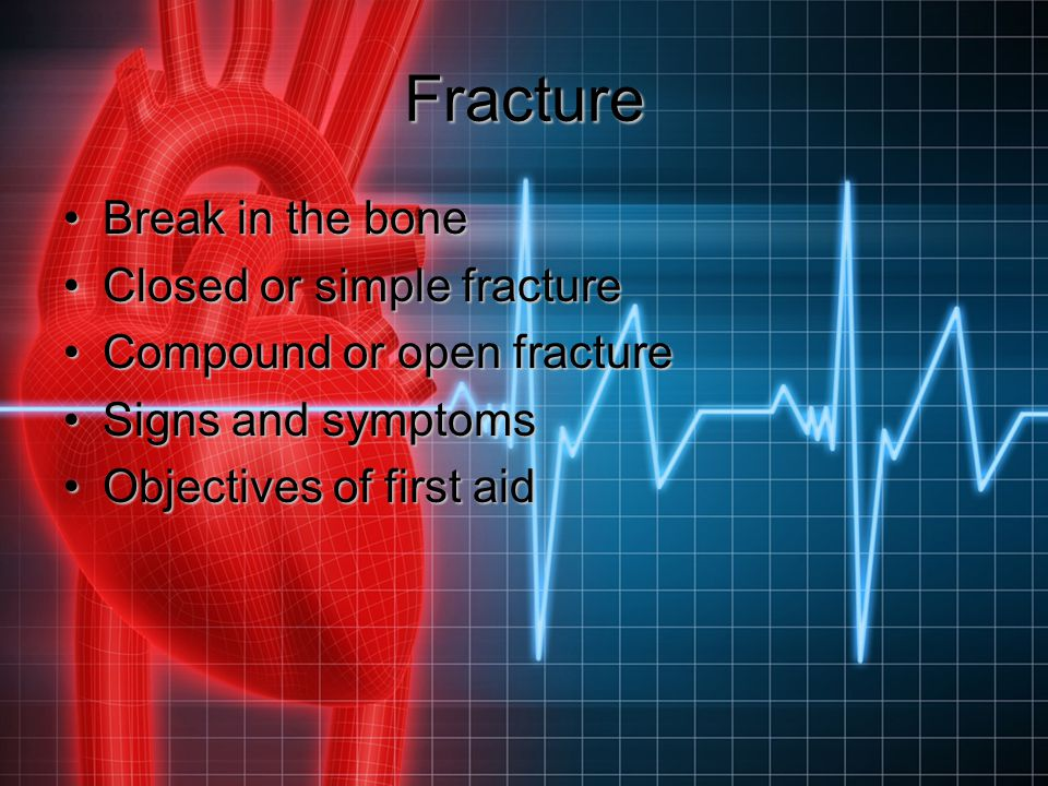 Fracture Break in the bone Closed or simple fracture
