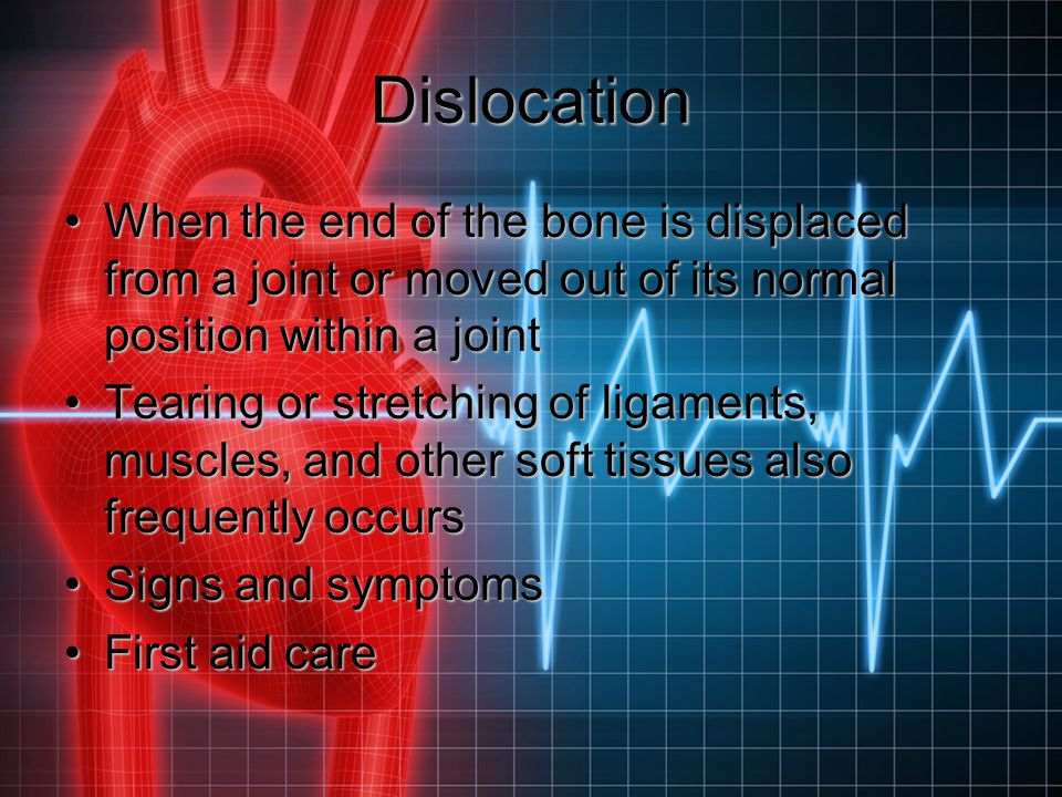 Dislocation When the end of the bone is displaced from a joint or moved out of its normal position within a joint.