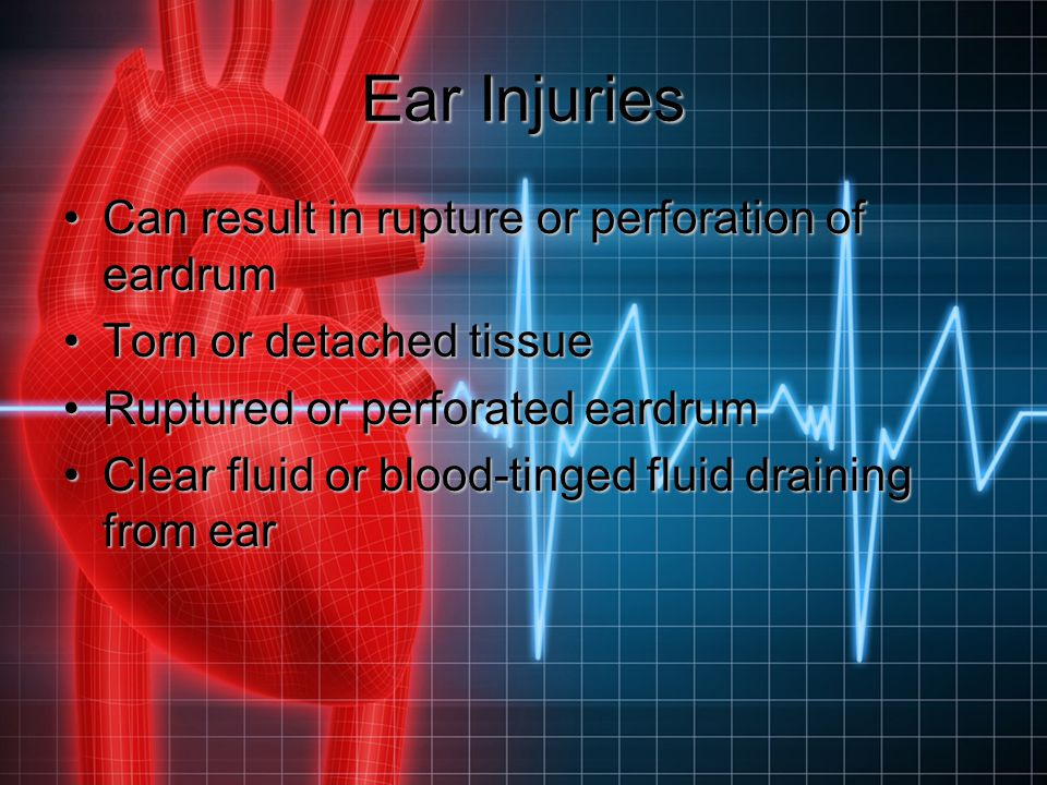 Ear Injuries Can result in rupture or perforation of eardrum