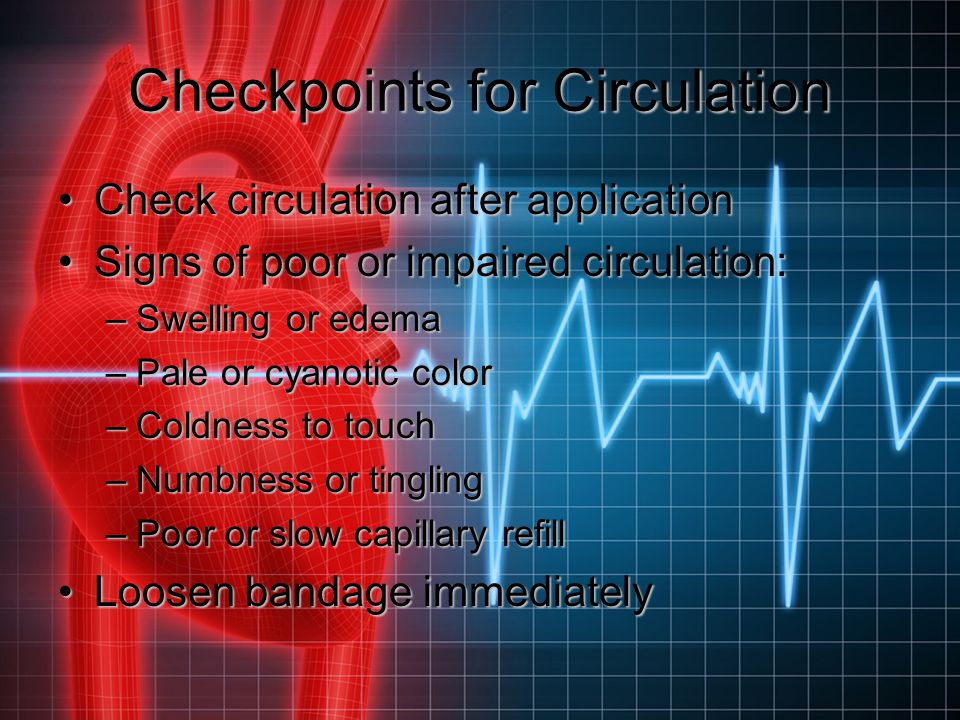 Checkpoints for Circulation