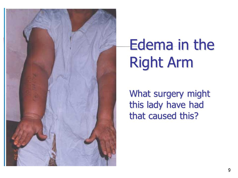 Edema in the Right Arm What surgery might this lady have had that caused this