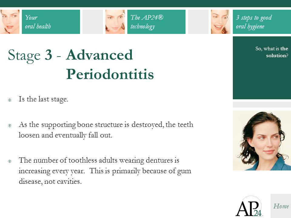 Stage 3 - Advanced Periodontitis