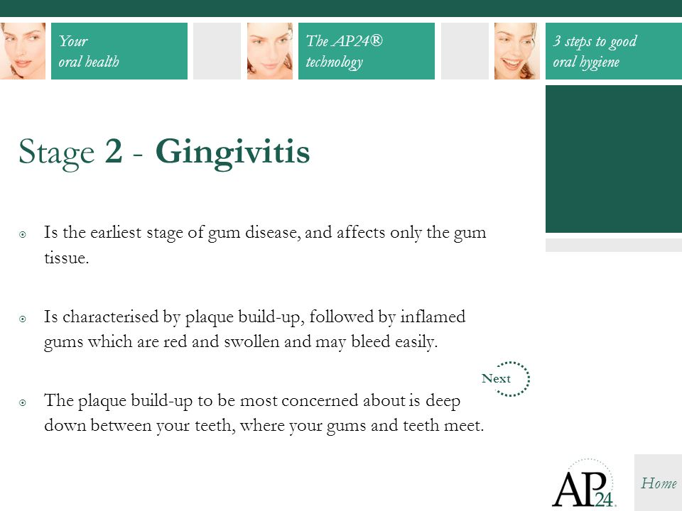 Stage 2 - Gingivitis Is the earliest stage of gum disease, and affects only the gum tissue.