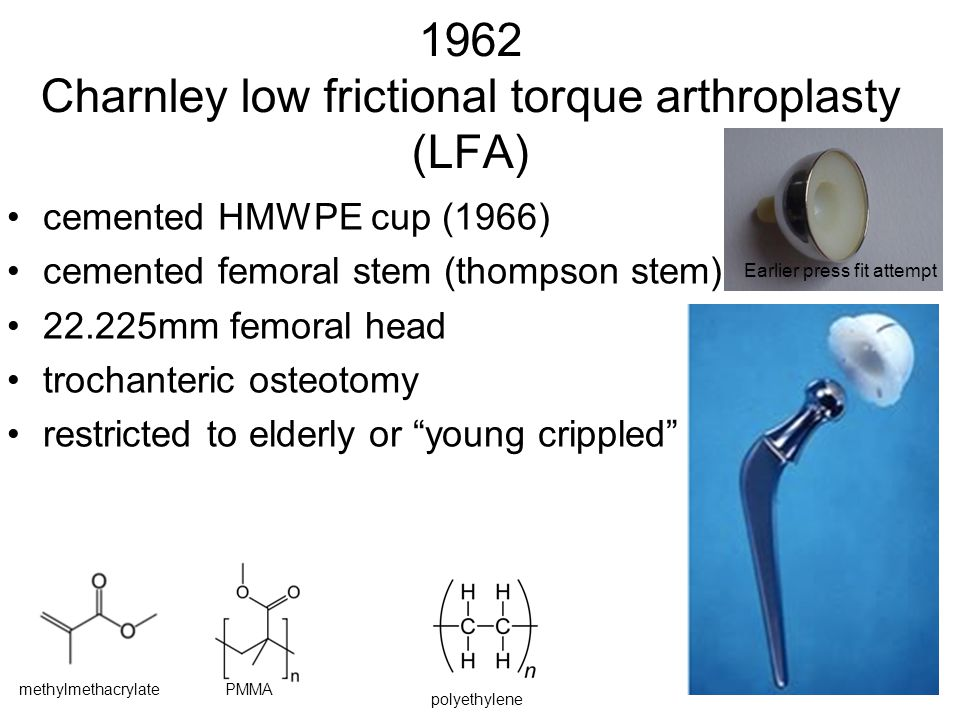1962 Charnley low frictional torque arthroplasty (LFA)