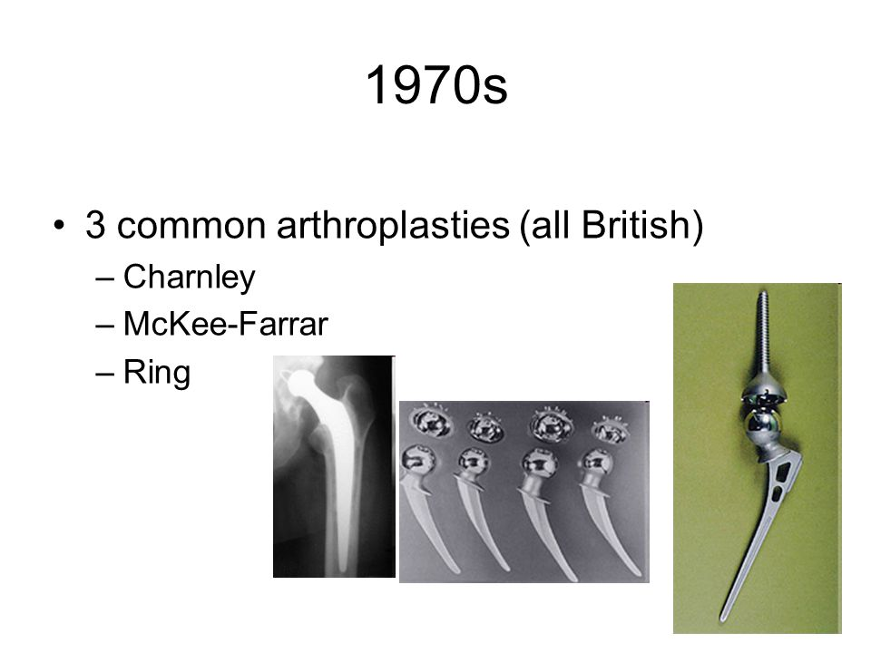 1970s 3 common arthroplasties (all British) Charnley McKee-Farrar Ring