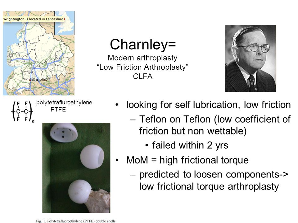 Charnley= Modern arthroplasty Low Friction Arthroplasty CLFA