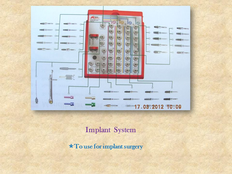 Implant System To use for implant surgery