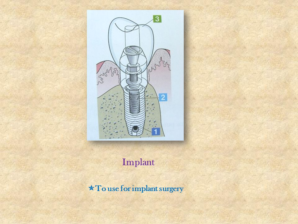 Implant To use for implant surgery