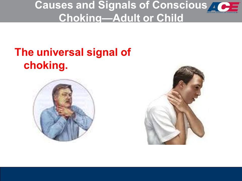 Causes and Signals of Conscious Choking—Adult or Child