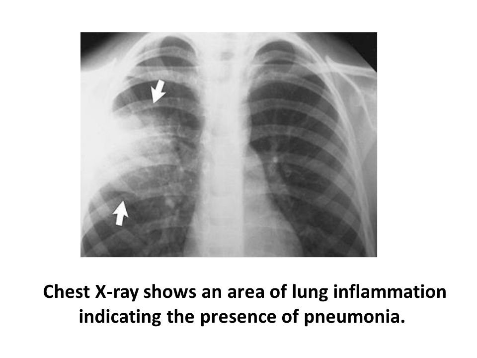 Chest X-ray shows an area of lung inflammation indicating the presence of pneumonia.