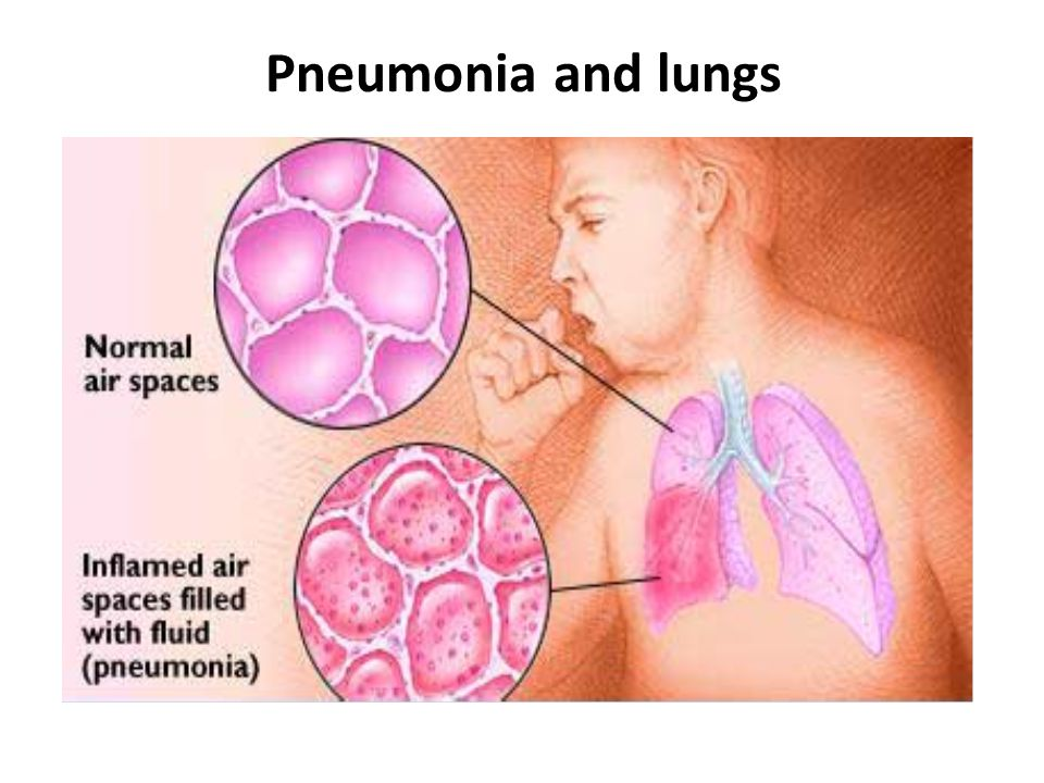 Pneumonia and lungs
