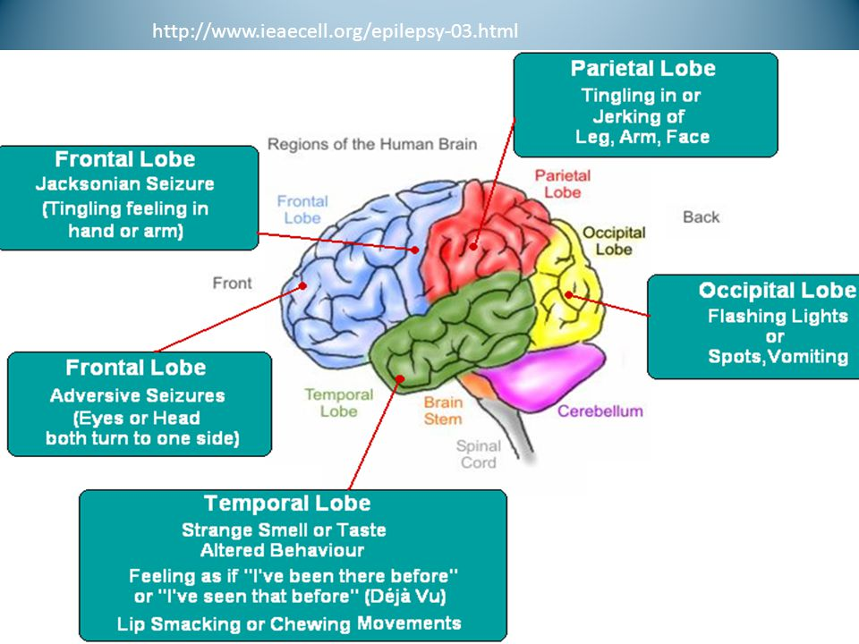 http://www.ieaecell.org/epilepsy-03.html Where some seizures originate and the expected movement http://www.ieaecell.org/epilepsy-03.html.