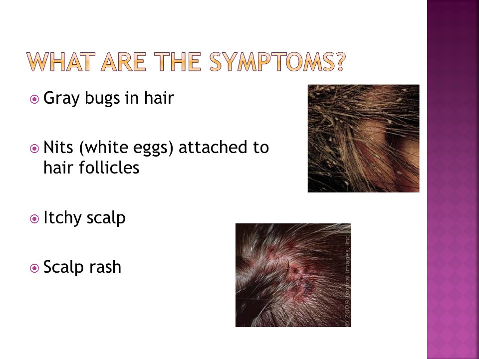 What are the symptoms Gray bugs in hair
