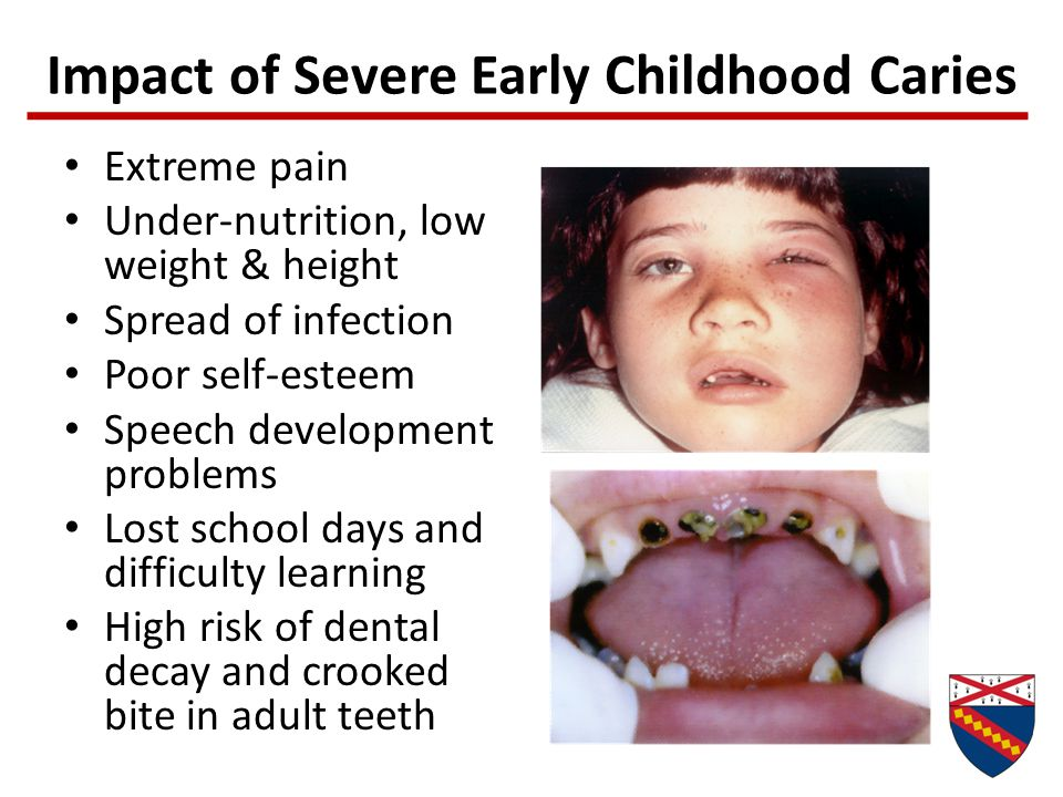 Impact of Severe Early Childhood Caries