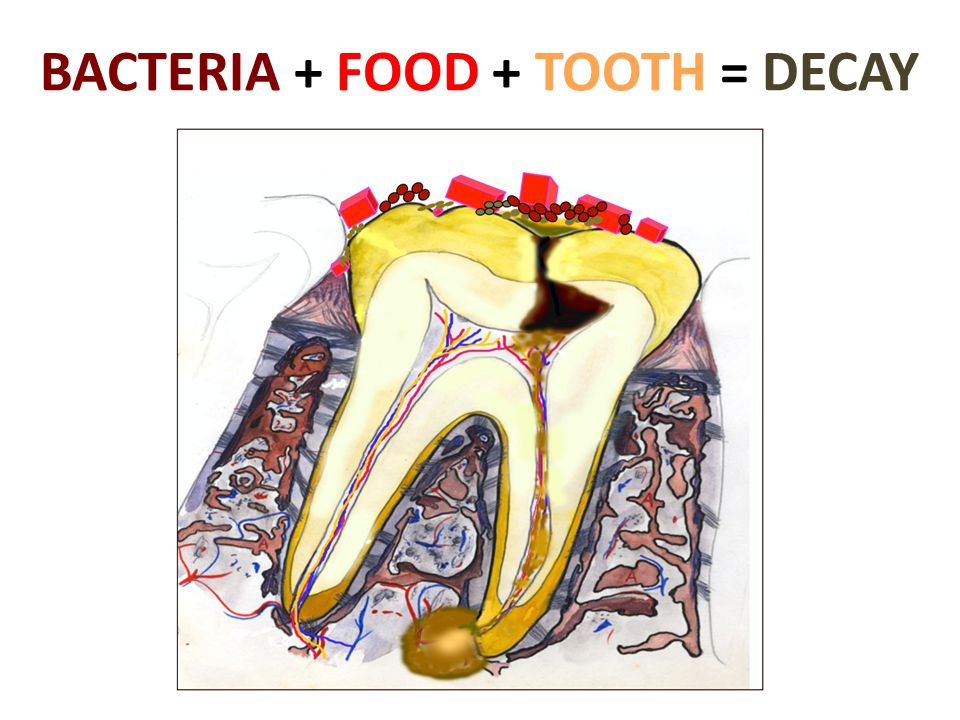 BACTERIA + FOOD + TOOTH = DECAY