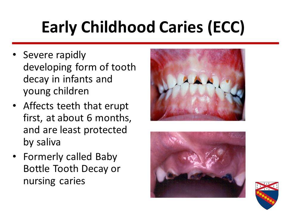 Early Childhood Caries (ECC)