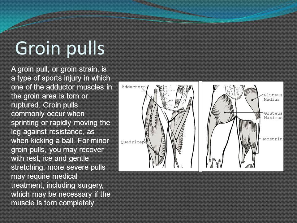 Groin pulls