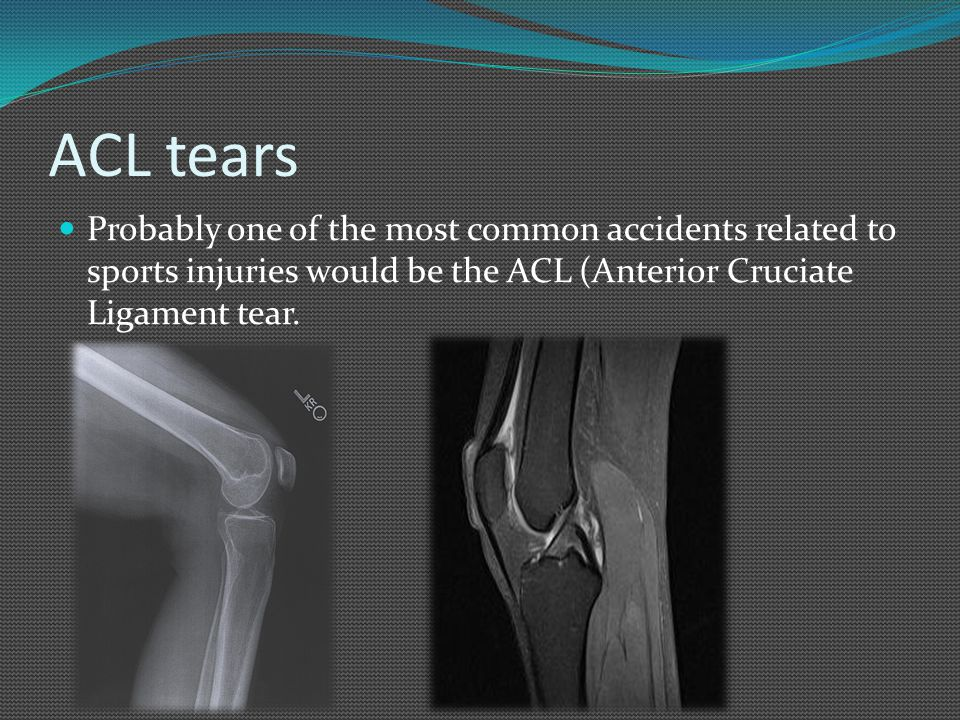 ACL tears Probably one of the most common accidents related to sports injuries would be the ACL (Anterior Cruciate Ligament tear.