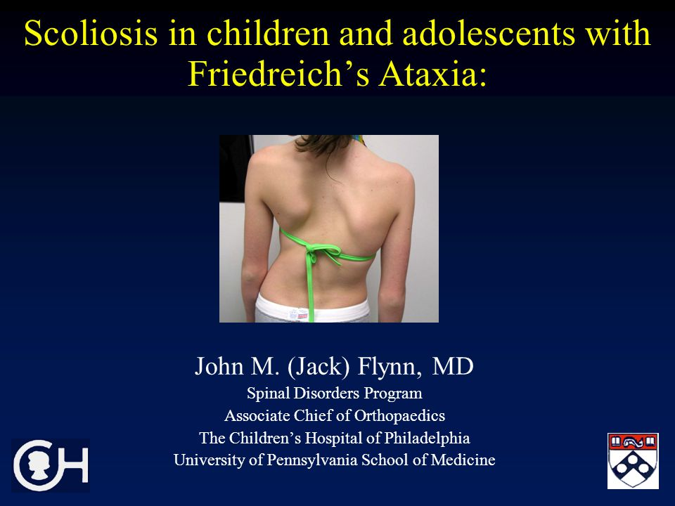 Scoliosis in children and adolescents with Friedreich's Ataxia: