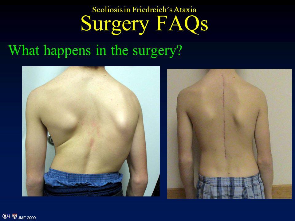 Scoliosis in Friedreich's Ataxia Surgery FAQs