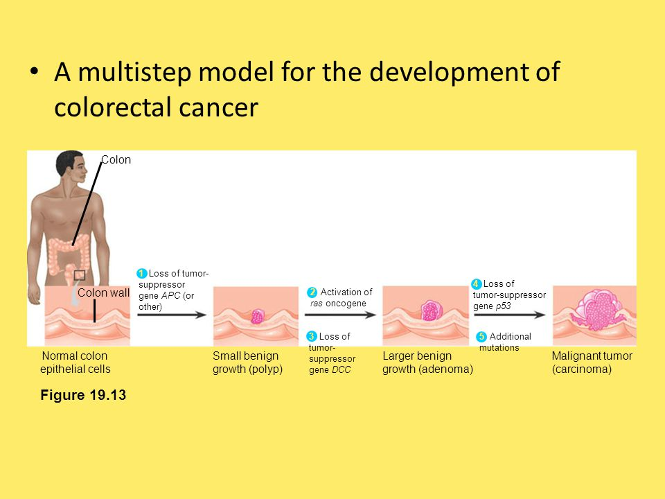 A multistep model for the development of colorectal cancer