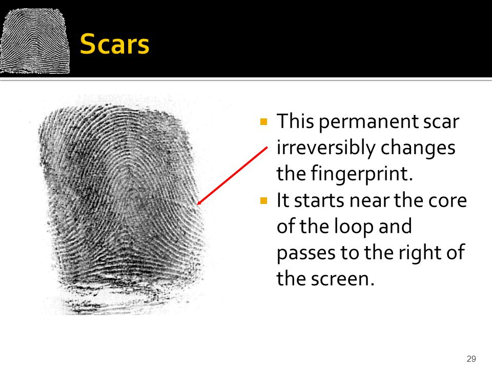 Scars This permanent scar irreversibly changes the fingerprint.