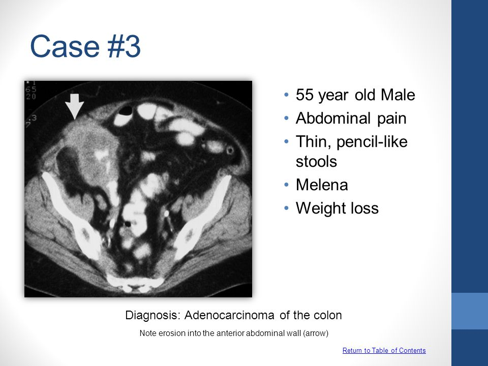 Case #3 55 year old Male Abdominal pain Thin, pencil-like stools
