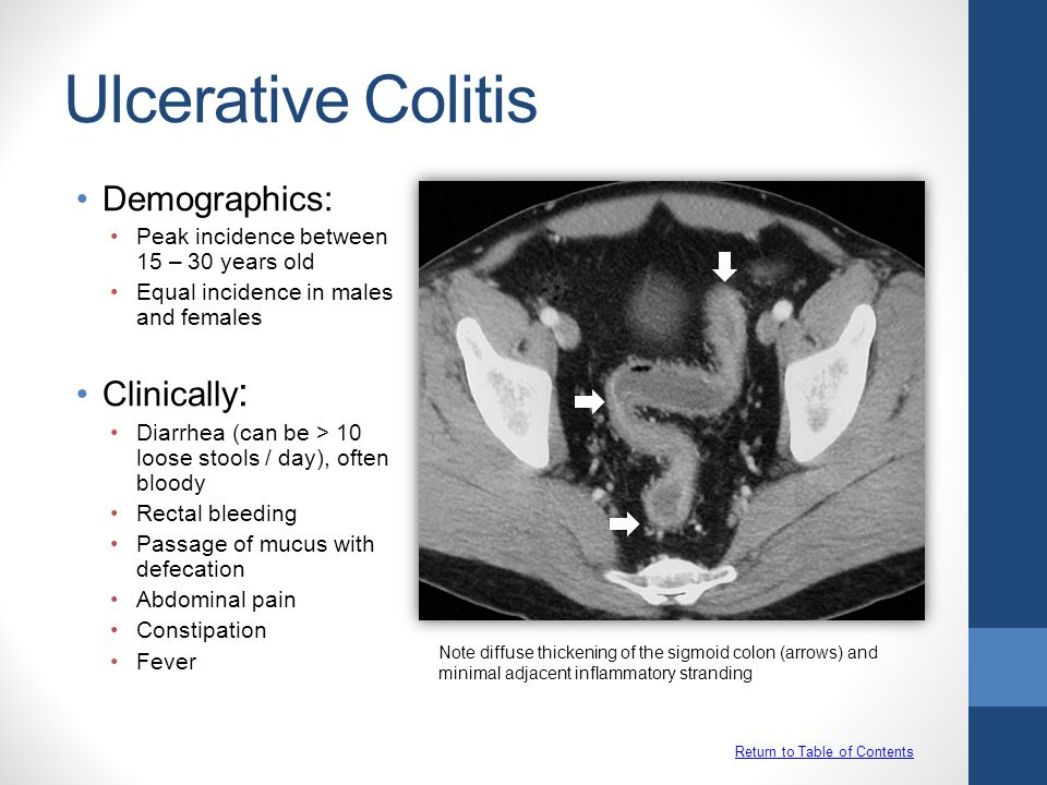 Ulcerative Colitis Demographics: Clinically: