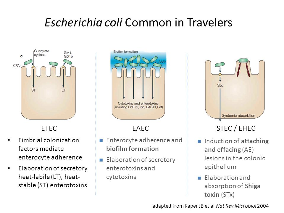 Escherichia coli Common in Travelers
