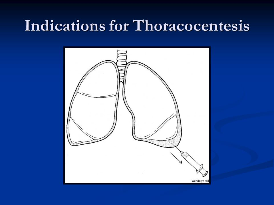 Indications for Thoracocentesis