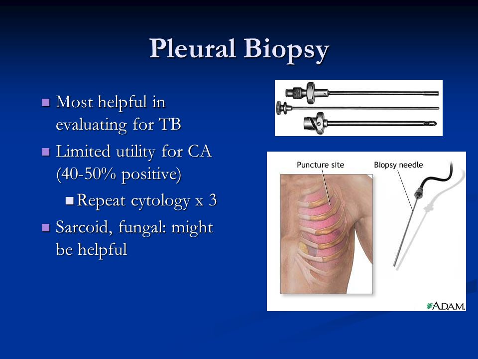 Pleural Biopsy Most helpful in evaluating for TB