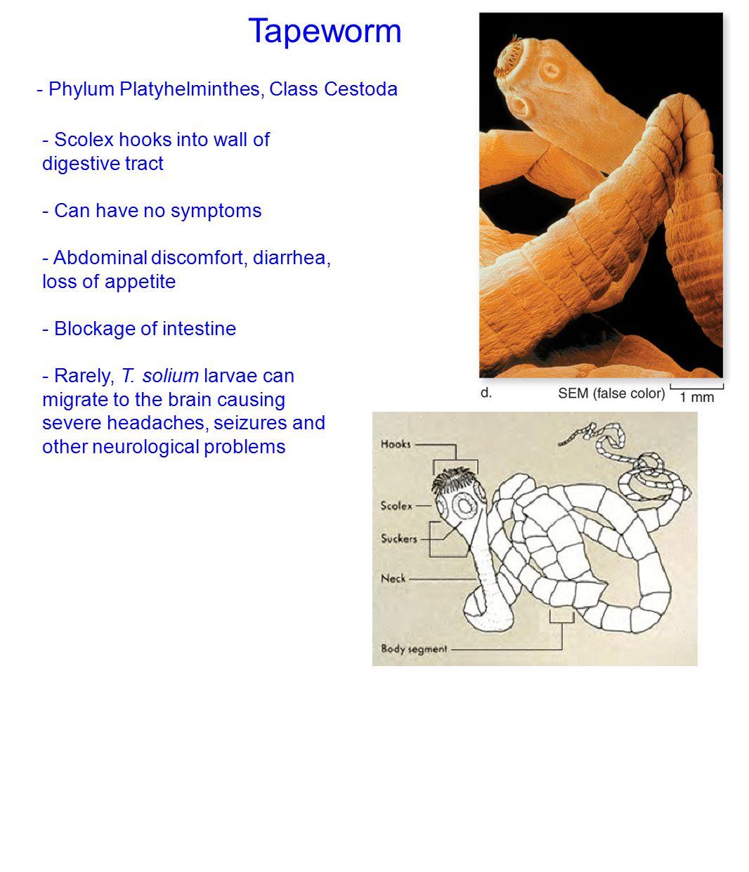 Tapeworm - Phylum Platyhelminthes, Class Cestoda