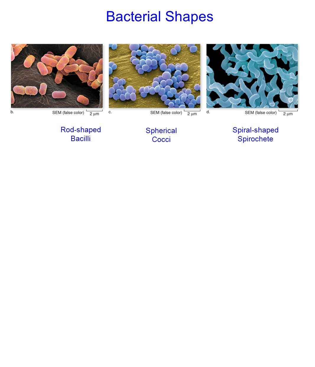 Bacterial Shapes Rod-shaped Spherical Spiral-shaped Bacilli Cocci