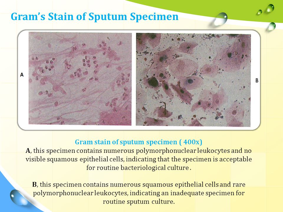 Gram stain of sputum specimen ( 400x)