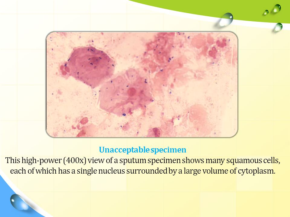 Unacceptable specimen This high-power (400x) view of a sputum specimen shows many squamous cells, each of which has a single nucleus surrounded by a large volume of cytoplasm.