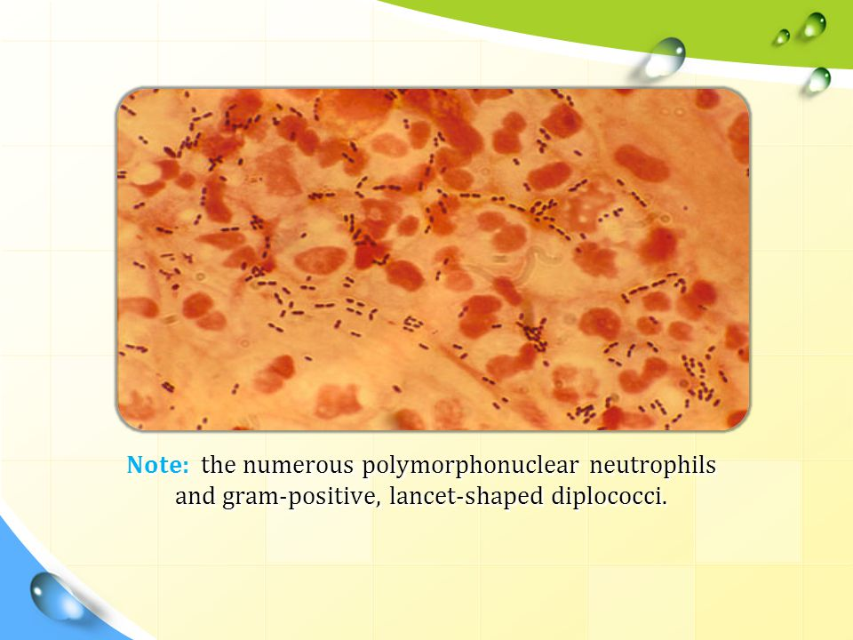 Note: the numerous polymorphonuclear neutrophils and gram-positive, lancet-shaped diplococci.