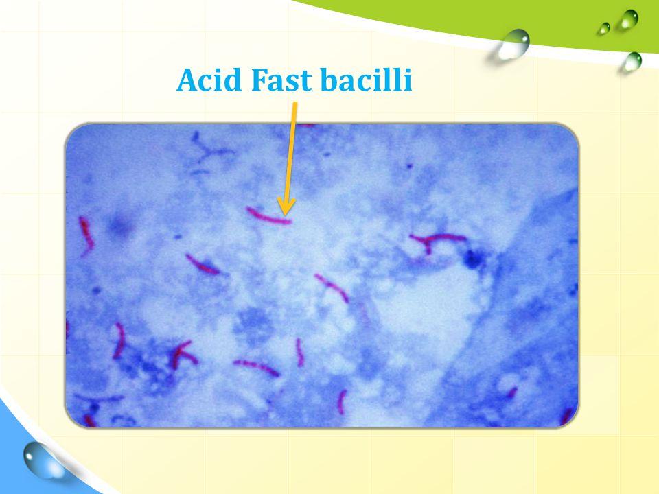Acid Fast bacilli