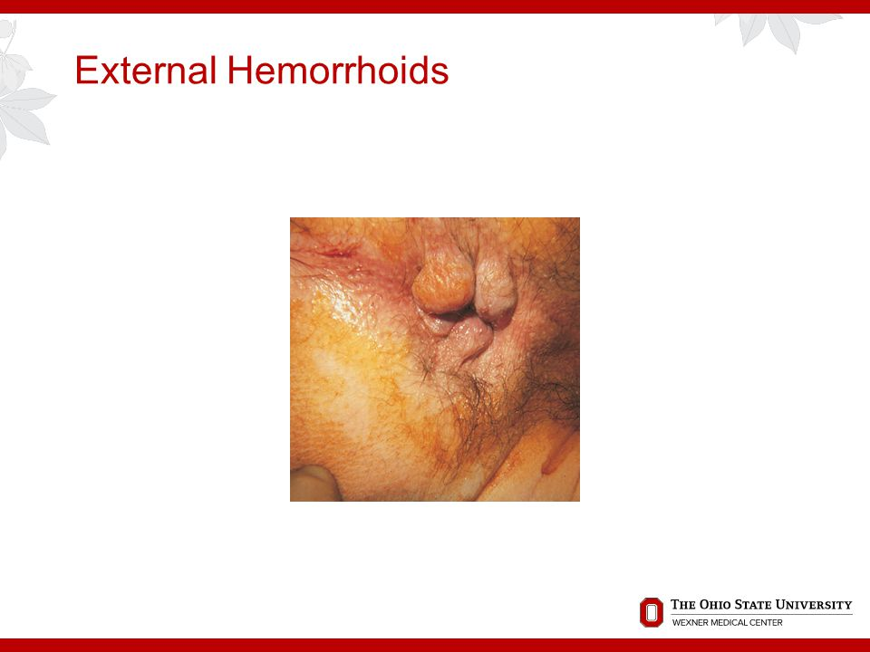 External Hemorrhoids | remedy for external hemorrhoid ...