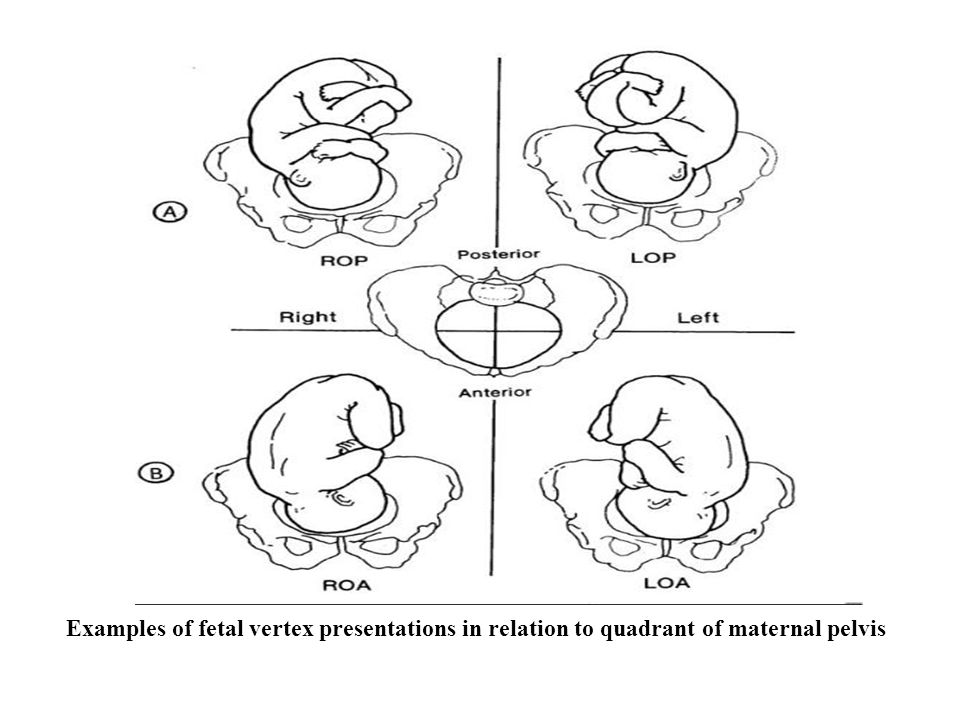 Examples of fetal vertex presentations in relation to quadrant of maternal pelvis